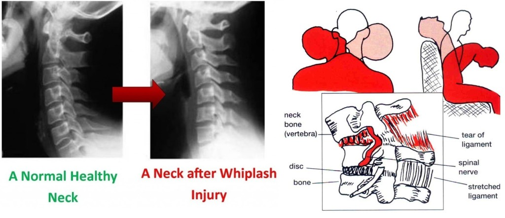 Structural Effect of Whiplash 03