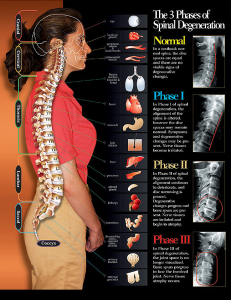 Showing the 3 phases of spinal degeneration as well as the organs these nerves connect to