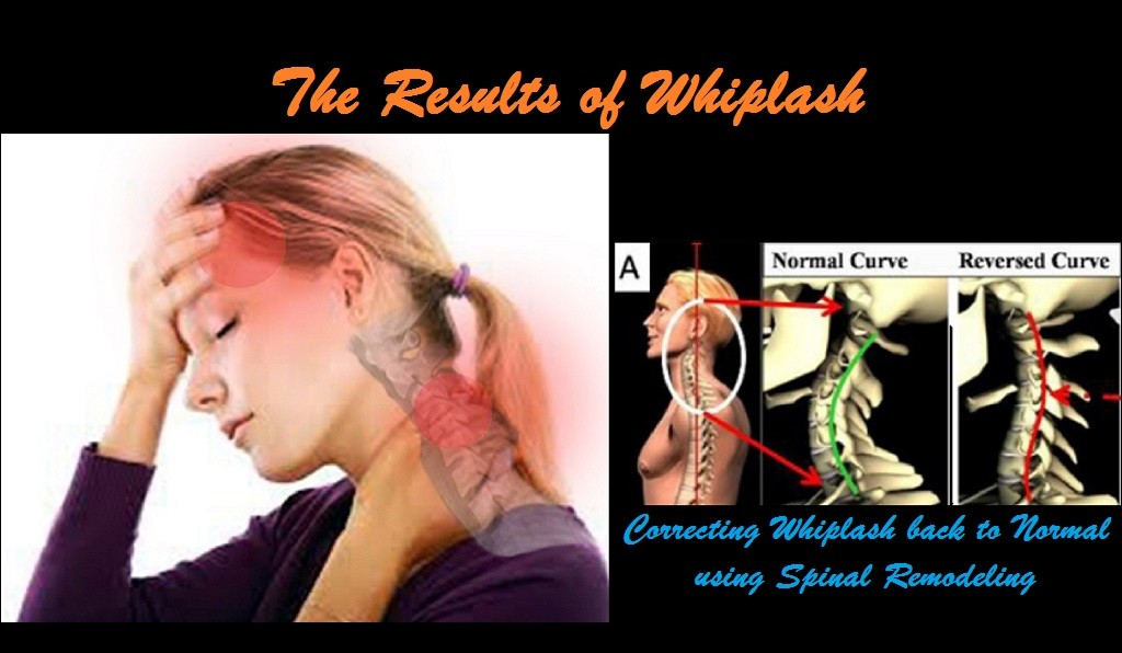 Whiplash, Auto Accidents, Injuries, Personal Injuries, PI, Neck Pain, Neck Injury, Sprain, Strain, Headaches, Dizziness